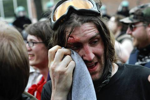 A protester wipes his face after suffering an injury during the anti-war protest march and rally.