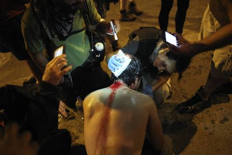 Harrison Schultz from Occupy Wall Street receives medical attention after getting hit in the head during a scuffle at VanBuren Street and Wabash Avenue.