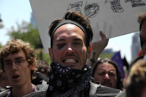 A protester sports a black eye during the march today.