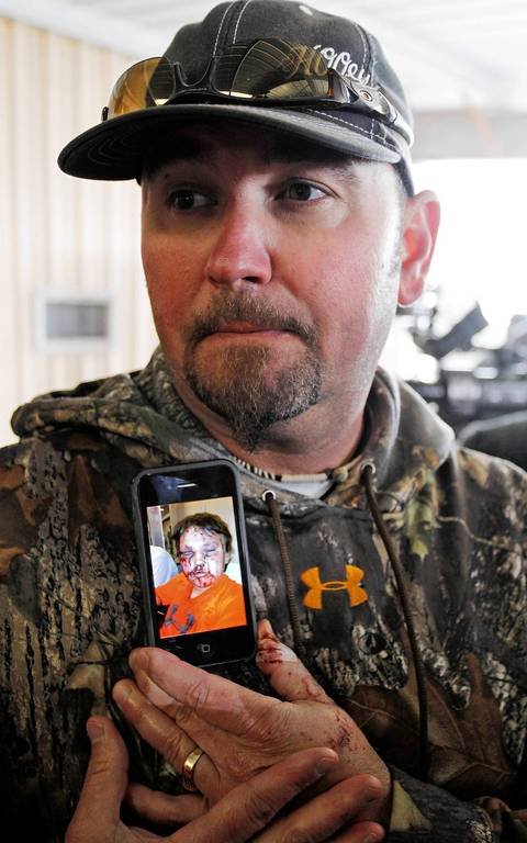 Bryan Anderson speaks to the media about the blast that knocked him and his son, Kaden, off the road in Anderson's truck, in West, Texas. Anderson shows a picture of his son Kaden's injuries from flying window glass.