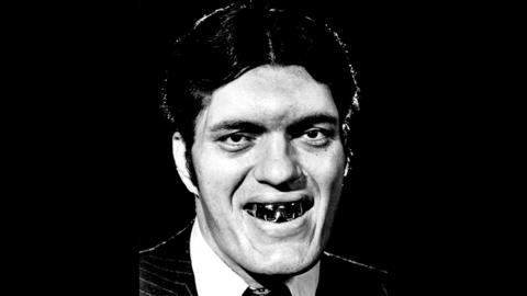 "Richard Kiel portrayed Jaws, a murderous giant with a mouthful of deadly steel teeth, in a scene from the James Bond film ""The Spy Who Loved Me"" (1977). Kiel died on Sept. 10 at age 74."