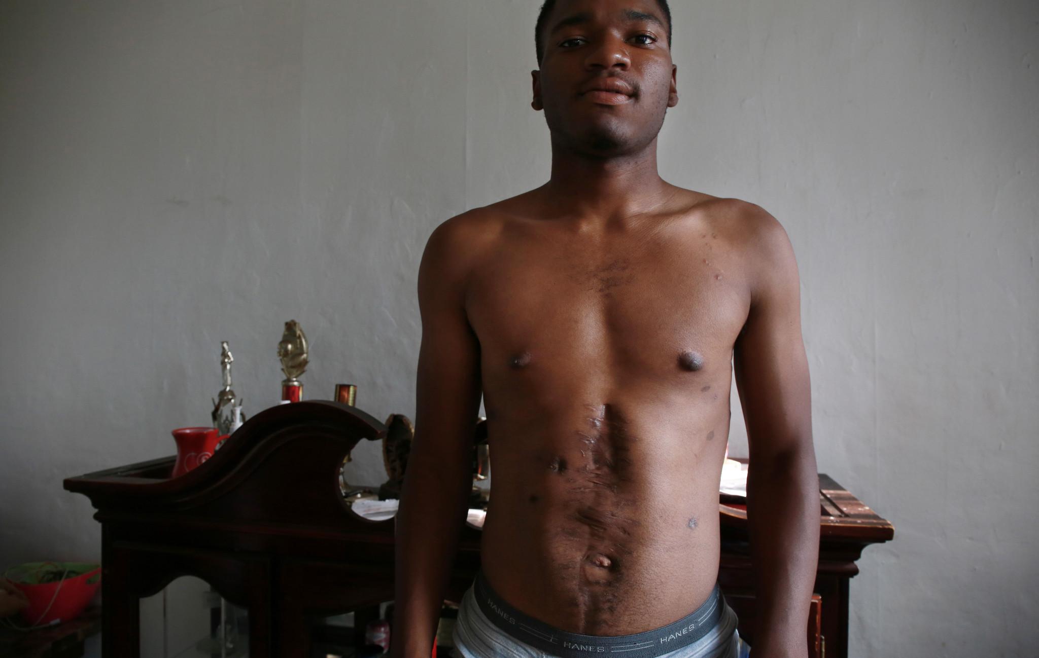 Jamal's scars
