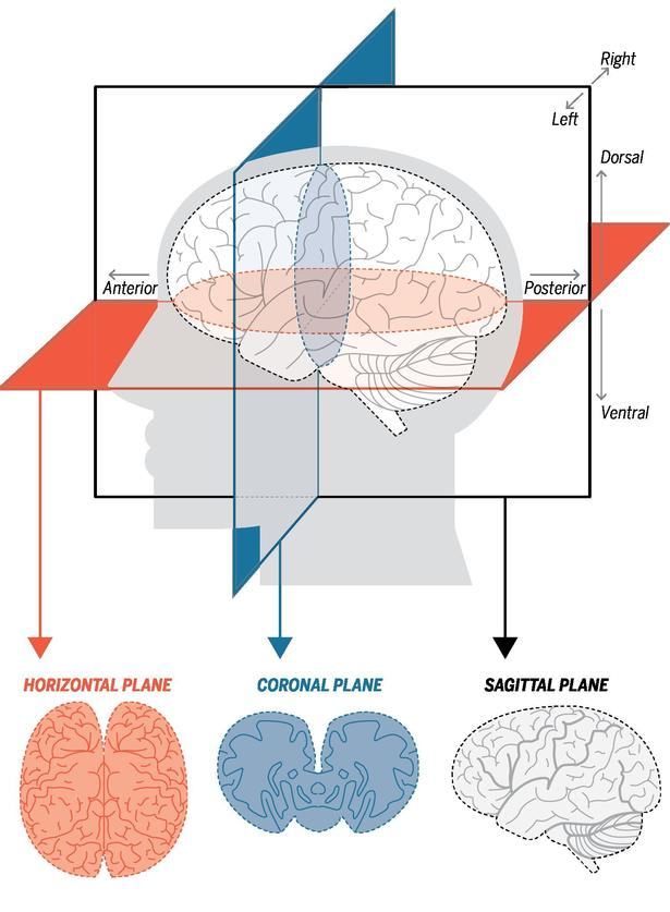 How Doctors Can Look Inside A Living Brain The San Diego Union Tribune