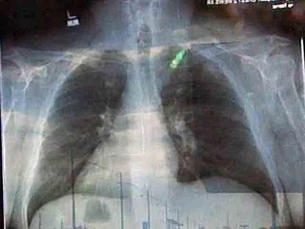 Image of Jesus in an X-ray.