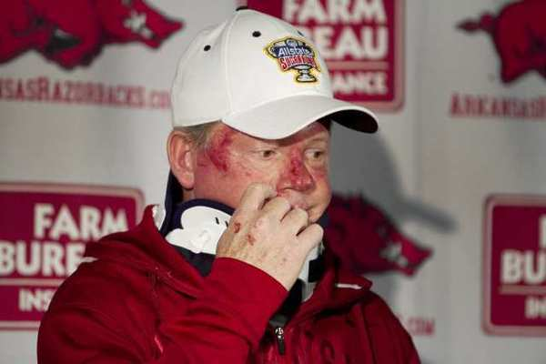 Arkansas football coach Bobby Petrino speaks during a news conference after a motorcycle crash.
