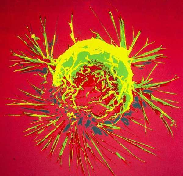 A breast cancer cell, photographed by a scanning electron microscope. New genome studies are revealing vast differences between tumors.