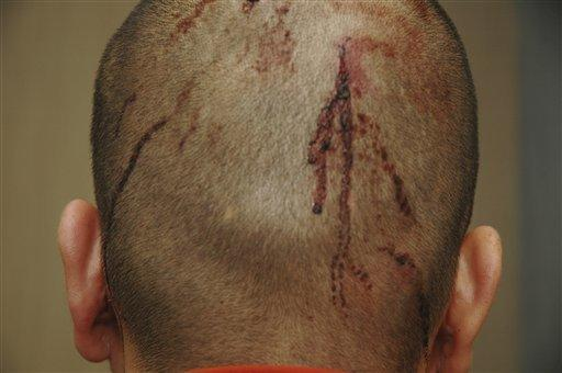 This Feb. 27, 2012 photo released by the State Attorney's Office shows George Zimmerman, the neighborhood watch volunteer who shot Trayvon Martin, with blood on the back of his head. The photo and reports were among evidence released by prosecutors that also includes calls to police, video and numerous other documents. The package was received by defense lawyers earlier this week and released to the media on Thursday.