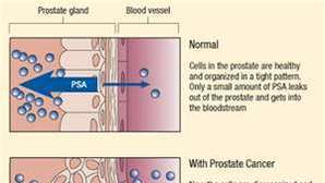 The PSA test and prostate cancer: A Riverside urologist reacts to new report