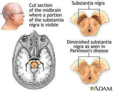 The accumulation of a protein called alpha-synuclein in Parkinson's disease causes the death of brain cells, particularly in the substantia nigra.