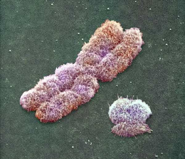 Human chromosomes (like the two pictured) seem to undergo changes in the amount of methylation as people age. This might hold a clue to aging, authors say.