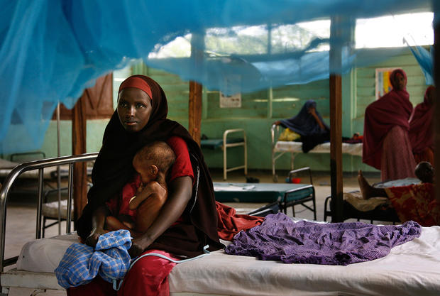 A woman holds a severely malnourished child at the Ifo camp in Dadaab.