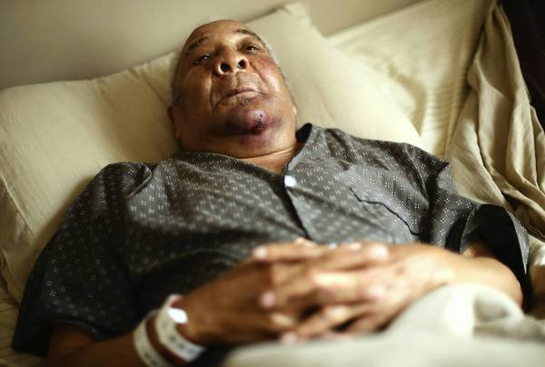 Porter B. Cross, 87, lies in bed Tuesday at his West Englewood home, recovering from a beating and robbery.