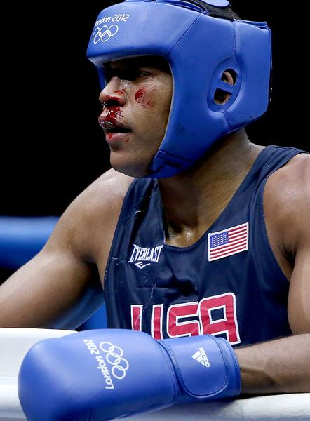 The bout is temporarily stopped as the United States'  Michael Hunter II bleeds from his nose during match with  Russia's Artur Beterbiev in the men's heavyweight division.