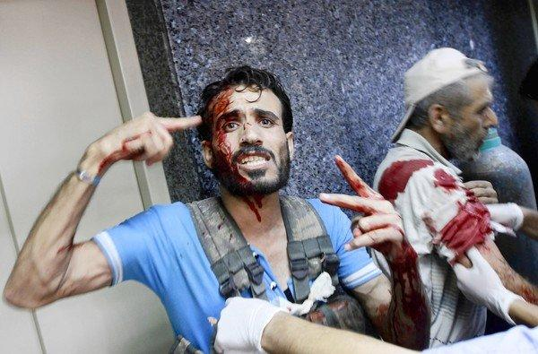 An injured fighter arrives at a field hospital in Aleppo, Syria. At least 168 people were killed across the country Friday.