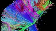 Neuroscience mapping brain connections