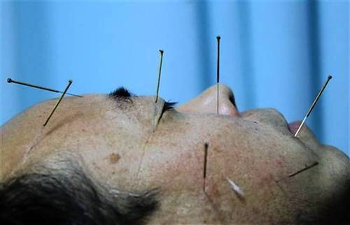 A patient lies on a bed as he undergoes acupuncture treatment