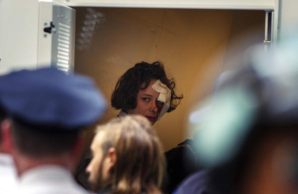 An Occupy Wall Street activist looks out from under a bandage after being arrested during demonstrations on the one-year anniversary of the movement in New York.