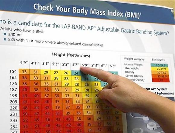 Bariatric surgery patient Carolyn Dawson checks her body mass index (BMI) on a chart in her doctor's office before an exam three weeks after her gastric bypass in Denver