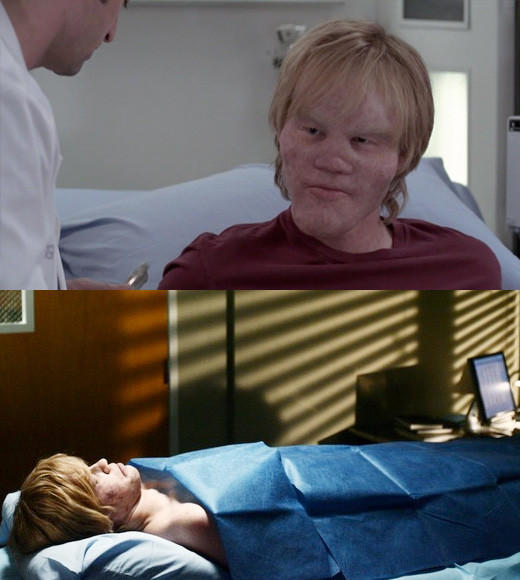 "15-year-old Jake suffered from a disease commonly known as ""Lionitis,"" which presents with calcium build-up in the face and skull, causing facial deformities. Though he was at Seattle Grace to see Derek, as the tumors may be affecting his brain.<br><br>It was also Mark Sloane's first episode, and as a plastic surgeon, he thought he could help make Jake look more normal -- which is all he'd ever wanted. At the prospect of a facial reconstruction, Jake was ecstatic. Unfortunately, he died on Derek's table before he ever got to look like an average kid.<br><br>In one of the most bizarre scenes ever, Mark decides to perform the reconstruction postmortem. At least Jake would be handsome for his funeral?"