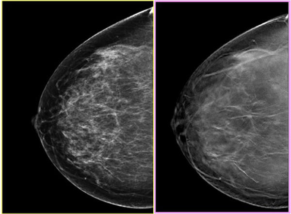 Breast Cancer Awareness: 3-D mammograms offer clearer view ...