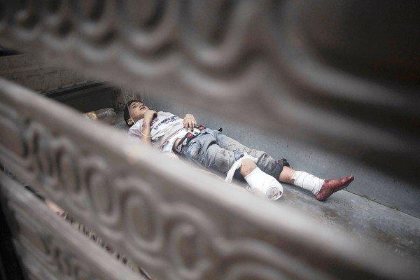 A Syrian child, wounded in shelling in Aleppo, lies in a truck bed.