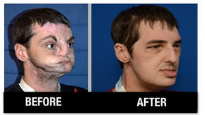 Update on Hillsville man who received face transplant
