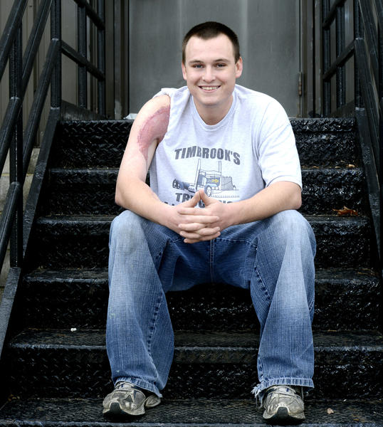 Brent Hoover of Falling Waters, W.Va., lost a bicep and has a scar caused by flesh-eating bacteria. He said he can no longer throw the ball in baseball, a game he loved to play.