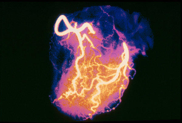 An angiogram image of a healthy heart.
