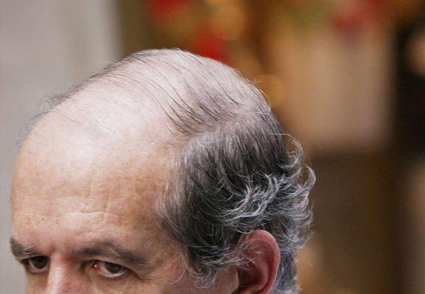 Scientists in Denmark reported Tuesday that visible signs of aging, such as balding, reflected an increased risk for heart disease.
