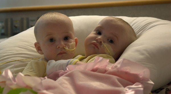 Conjoined twins Allison June and Amelia Lee Tucker before surgery.