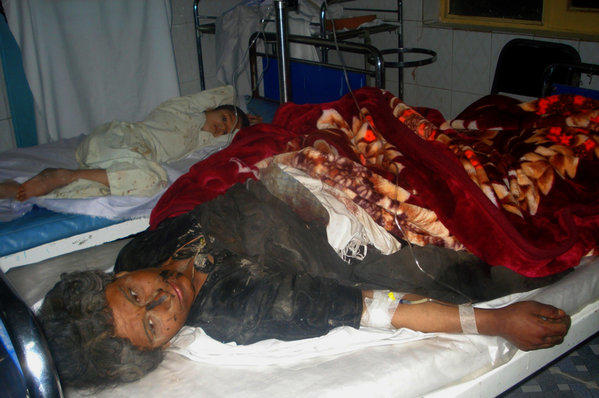 Injured Afghan villagers lie on beds in a hospital ward in Farah province on Friday after they were caught in an explosion of a roadside bomb that killed 17 civilians.