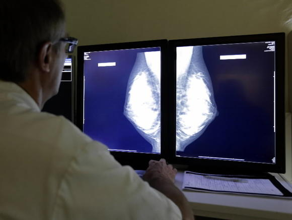 Women who work in certain occupations have a higher risk of breast cancer, a Canadian study has found.