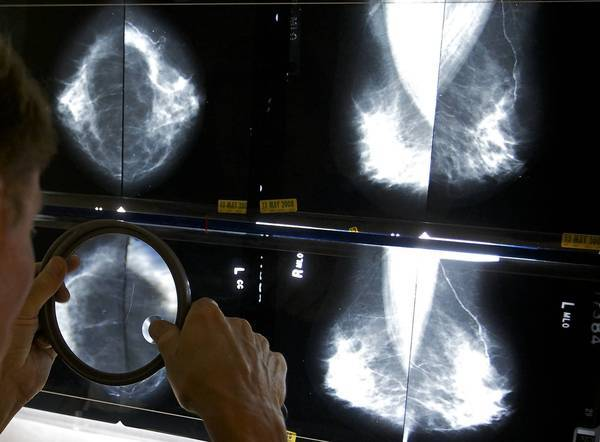 A radiologist checks the results of a mammogram.