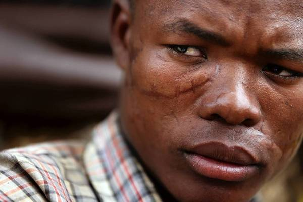 Maduhu Ginyebu suffered injuries that caused facial scarring after he was attacked by a rabid hyena.