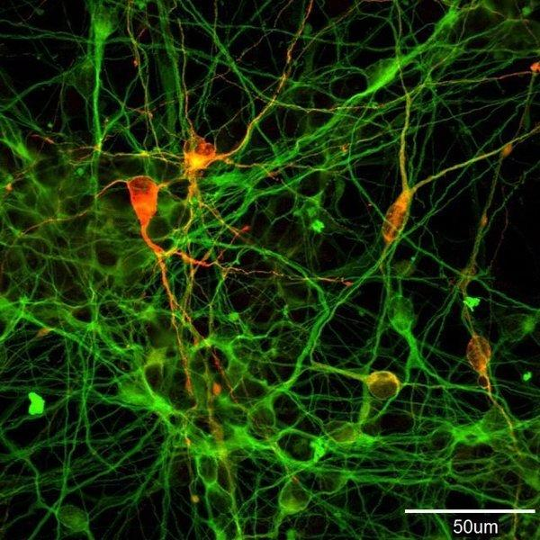 Researchers believe that someday treatments for Parkinson's disease will include transplants of dopamine-producing neurons, like these derived from human induced pluripotent stem cells.