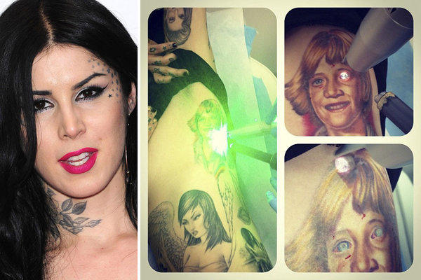 Kat Von D, left, posted an Instagram composite shot, right, on Friday after starting laser removal of a tattoo of young Jesse James, her ex-fiance.