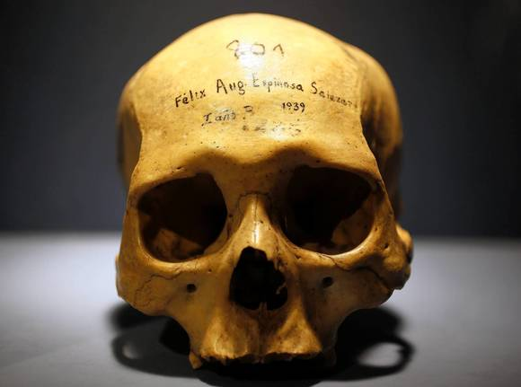 A skull is seen at the Wellcome Collection in London