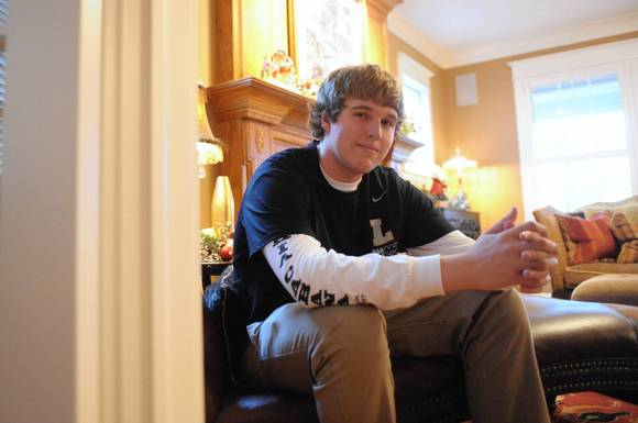 Graham Crawford, 17, of Libertyville, experienced significant psoriasis when he was younger.