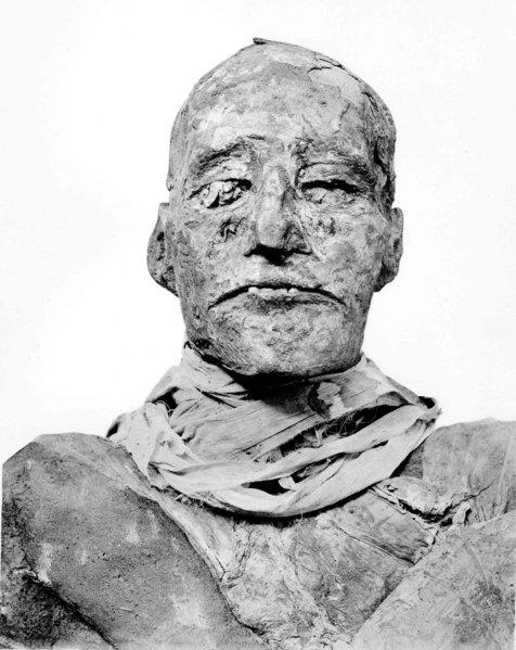 Pharoah Ramses III's throat was slit by an assassin in a plot by members of his own harem, says a study in BMJ. The wound is so deep that he could have died on the spot.