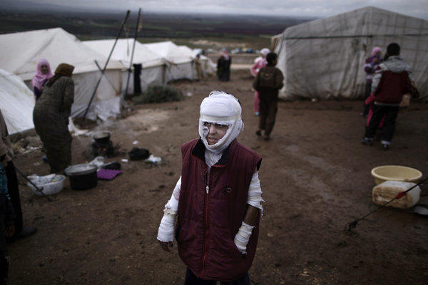 Abdullah Ahmed, 10, who suffered burns in a Syrian government airstrike and fled his home with his family, stands outside their tent at a camp in the village of Atmeh, Syria, on Dec. 11.