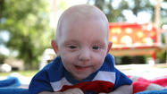 Baby with brain cancer thrives after chemotherapy