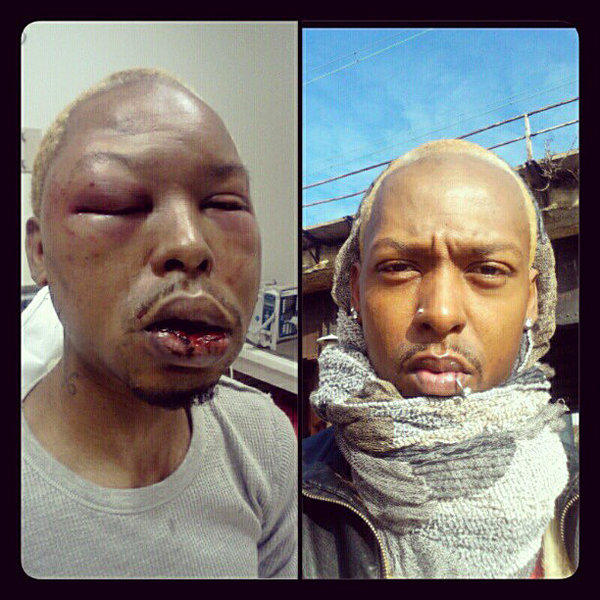 Kenni Shaw posted this photo on his Instagram account that shows him before (right) and after being beaten.