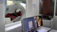 Many people unaware of radiation risk from CT scans