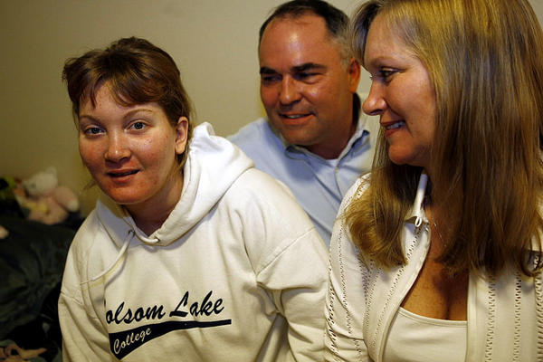 Christina Eilman, 22, now at home with her parents Rick and Kathy in a suburb of Sacramento, CA., on Tuesday, March 6, 2007. Christina spends most of the time in her bed or on the living room sofa. Eilman, a former UCLA student suffering from a severe bipolar episode, survived a fall from the 7th-floor window of the Robert Taylor Homes after police released her into a high-crime neighborhood on May 8, 2006, in Chicago.