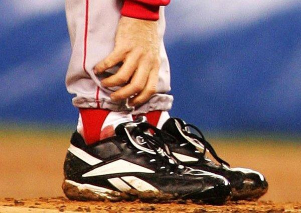 Curt Schilling had a bloody sock during the 2004 ALCS.