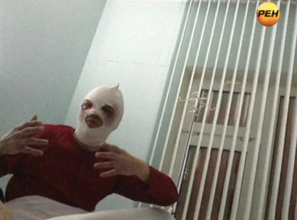 In this video grab provided by RenTV via APTN, artistic director of the Bolshoi ballet Sergei Filin gestures in a hospital in Moscow on Friday after an assailant threw acid in his face.