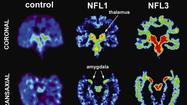 Study finds chronic brain damage in retired football players