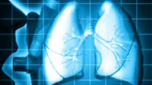 What's Going Around: Respiratory infection