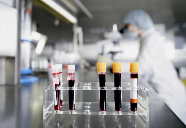 "Tubes containing blood samples await testing. Consumer Reports says ""most people"" -- those who are not at high risk for a particular cancer and who are without symptoms of it -- can skip screenings for eight kinds of the disease."