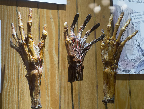 This exhibit of dried hands is part of The Grimm's Anatomy exhibit at the is on display at The Mutter Museum of The College of Physicians of Philadelphia. The museum is billed as the city's disturbingly informative museum.